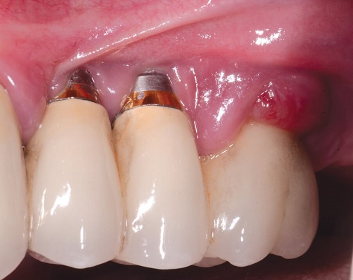 Cấy Ghép Trụ Implant Sai Vị Trí