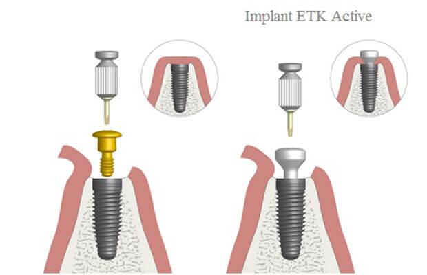 Implant Etk Active Có Dạng Côn Thuôn