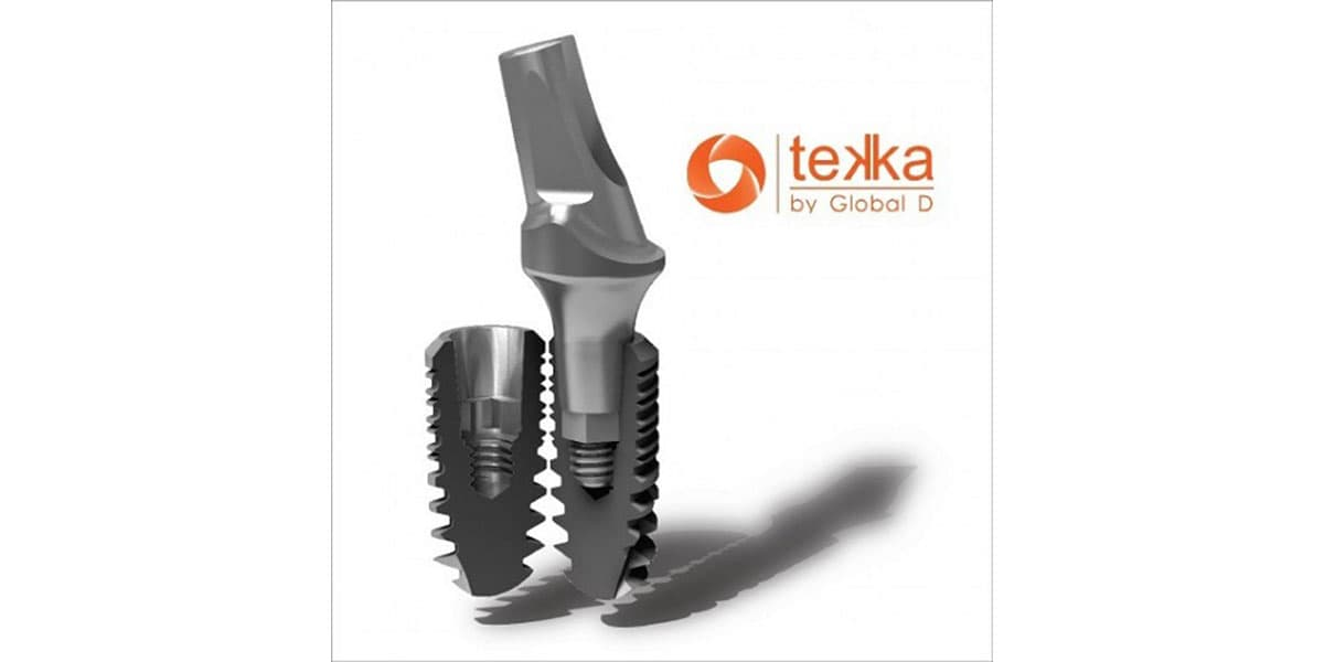 implant tekka số 1 tại pháp