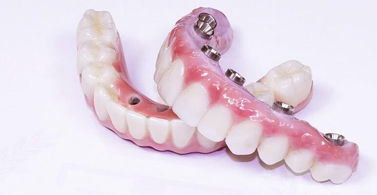 Lắp Hàm Giả Tháo Lắp Hàm Sứ Trên Trụ Implant