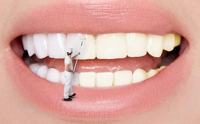 Nên Tẩy Trắng Răng Tại Nhà Hay Thực Hiện Tại Nha Khoa
