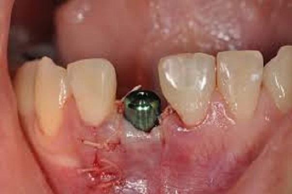 Nhiễm Trùng Vùng Cấy Ghép Implant