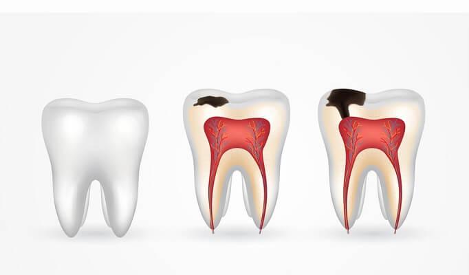 Sâu Răng Là Gì Nguyên Nhân Và Các Giai đoạn Sâu Răng