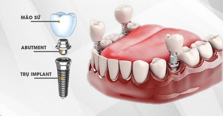 Thực Tế Trồng Răng Implant Có Nguy Hiểm Không