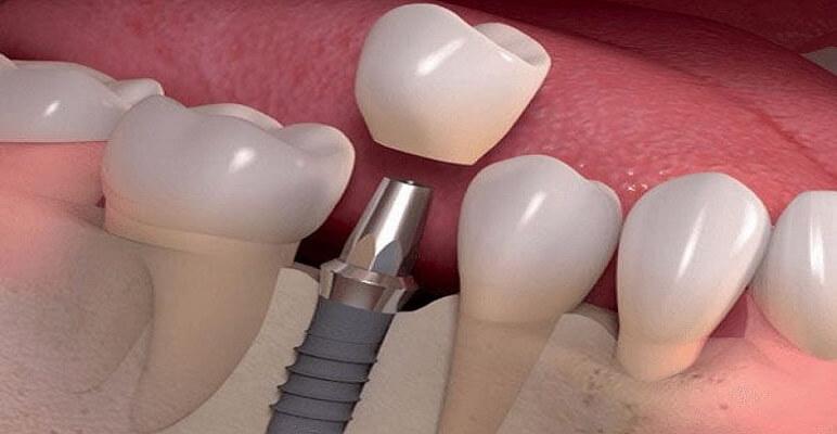 Trồng Răng Implant Thực Hiện Như Thế Nào