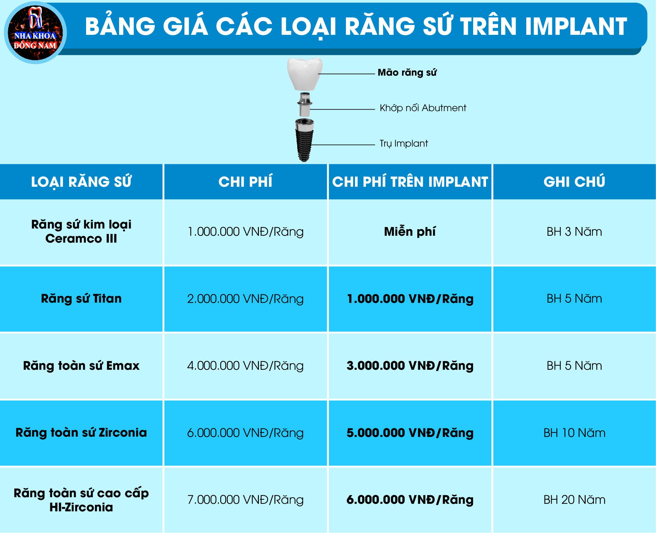 Bảng Giá Răng Sứ Thực Hiện Cấy Ghép Implant