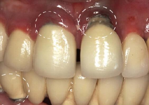 Biến Chứng Khi Trồng Răng Implant Giá Rẻ