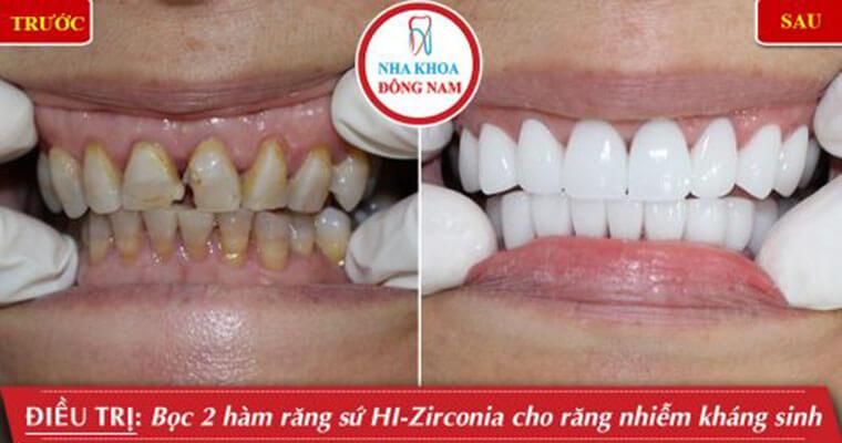 Bọc 2 Hàm Răng Sứ Hi Zirconia Cho Răng Nhiễm Kháng Sinh