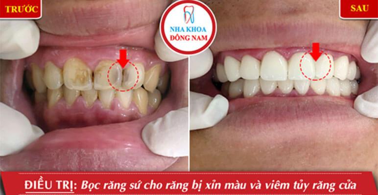 Bọc Răng Sứ Cho Răng Bị Sỉn Màu Và Viêm Tủy