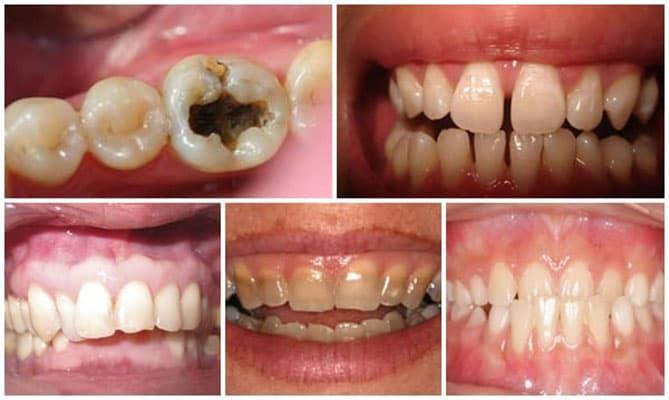 các trường hợp bọc răng sứ cercon