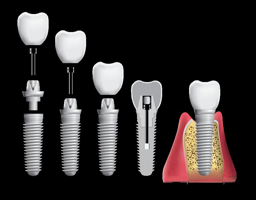 Cấu Tạo Răng Implant Full