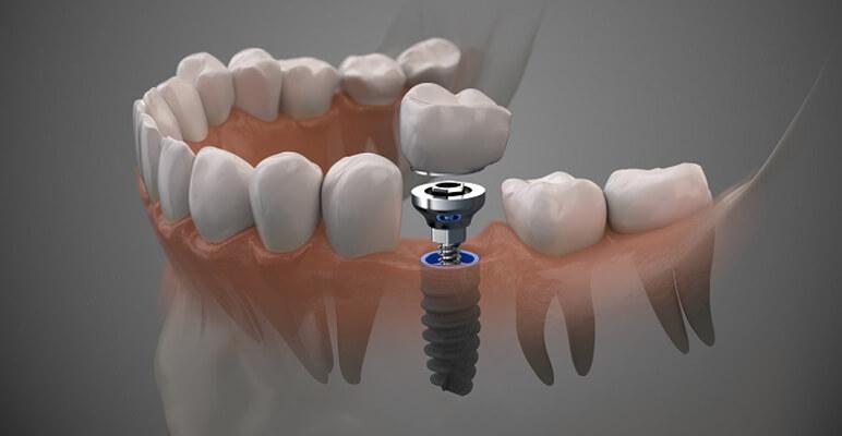 Cấu Tạo Trụ Implant C Tech