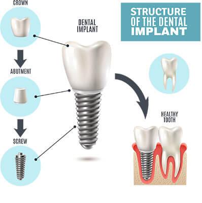 cấu trúc răng Implant so với răng thật