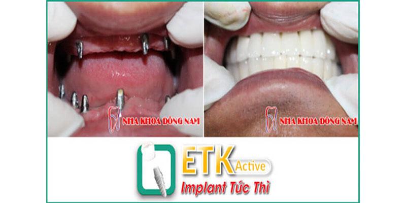 cấy ghép răng implant etk active có tốt không