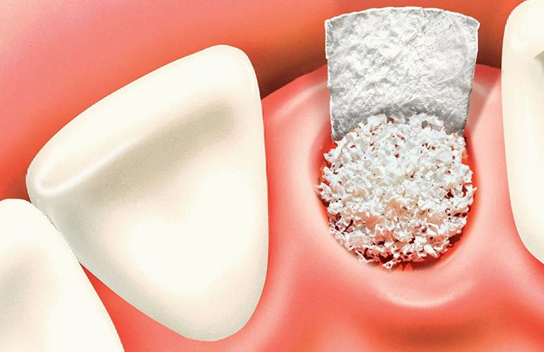 Ghép Xương Hàm Trước Khi Trồng Răng Implant