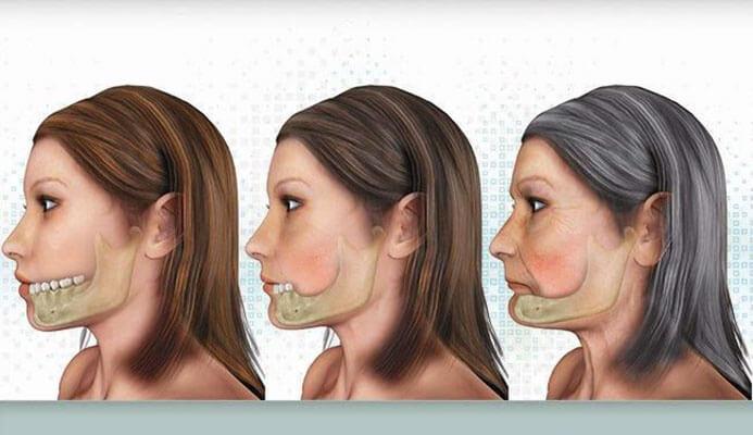 hậu quả của việc mất răng gây tiêu xương hàm
