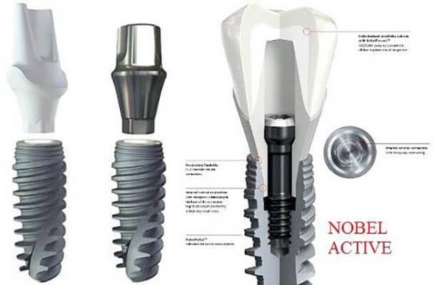 Hệ Thống Trụ Implant đa Dạng