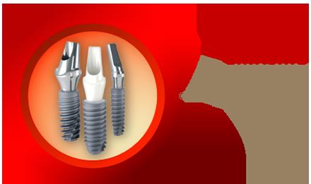 icon trụ implant etk active