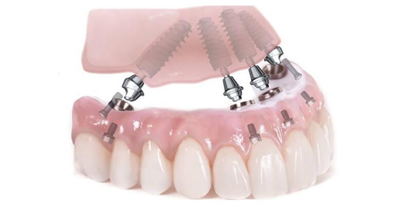 Implant All On 4 Sử Dụng Vật Liệu Phục Hồi Nào
