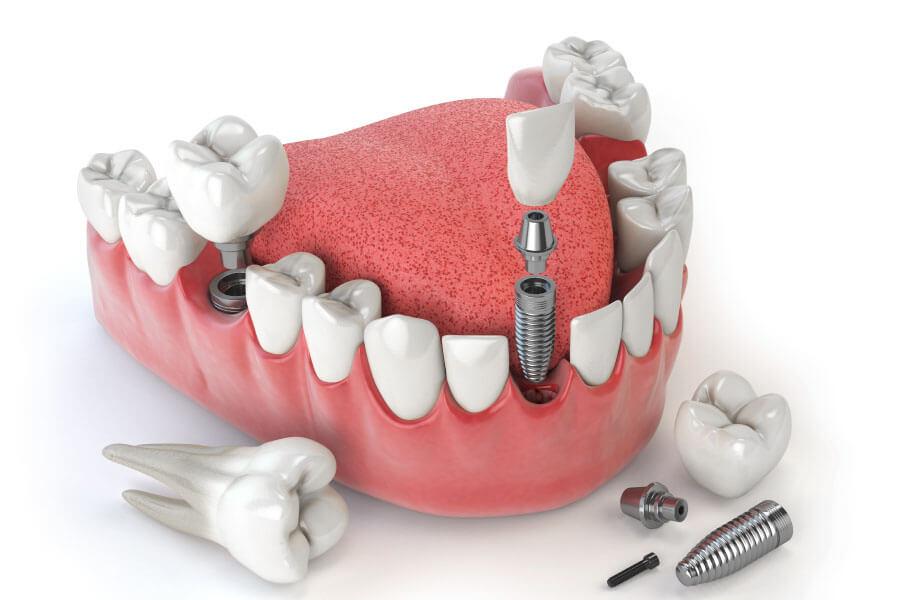 Implant Cho Trường Hợp Mất 1 Răng Cửa Hoặc Hàm