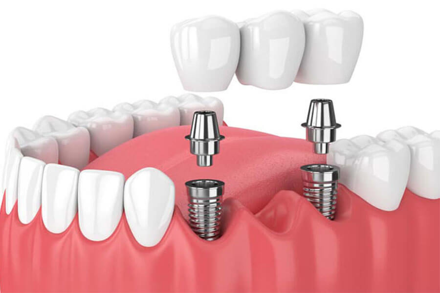 Implant Cho Trường Hợp Mất Nhiều Răng