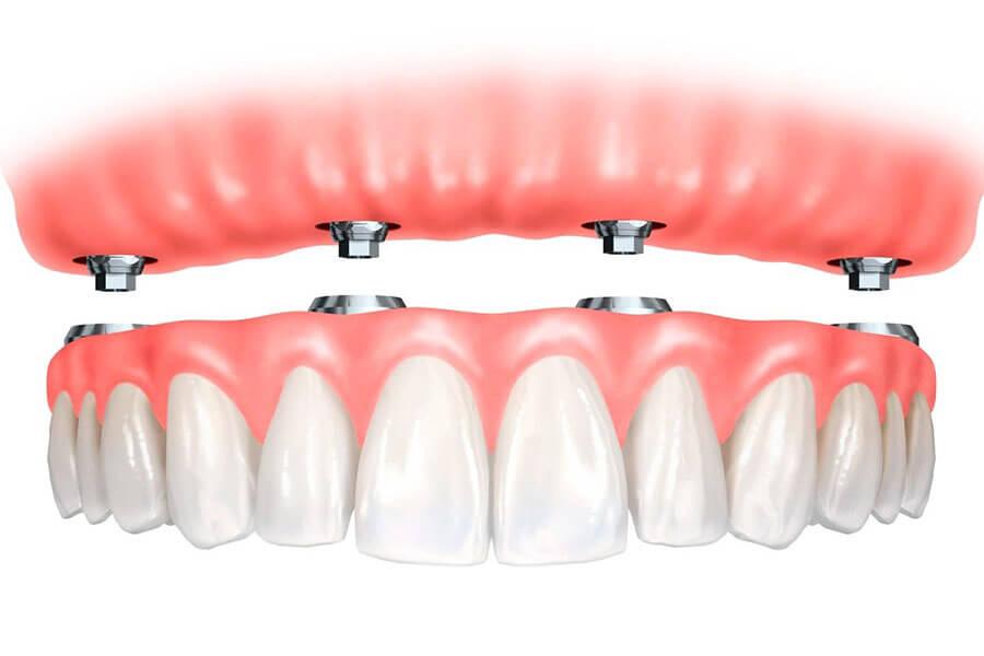 Implant Cho Trường Hợp Mất Răng Nguyên Hàm