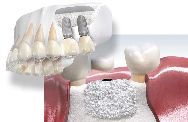 Khắc Phục Tiêu Xương Hàm Bằng Trồng Răng Implant