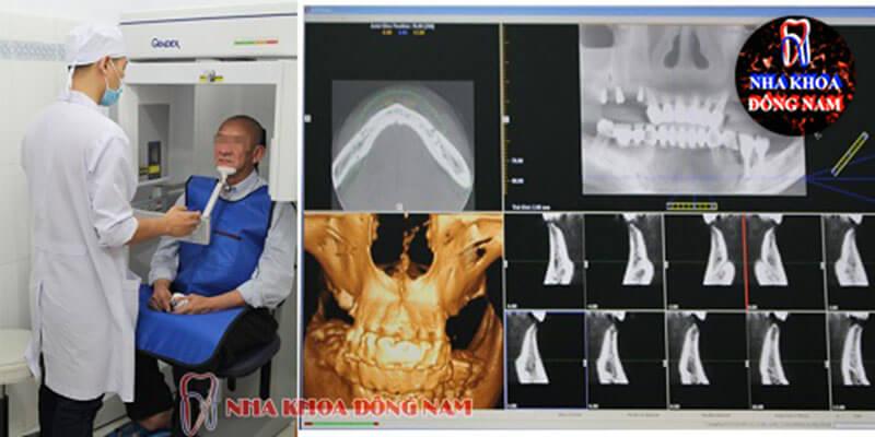 kiểm tra tình trạng răng bị mất để quyết định có trồng răng mini implant