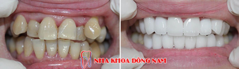 Mão Răng Sứ Chỉnh Sửa điều Trị Răng Hô