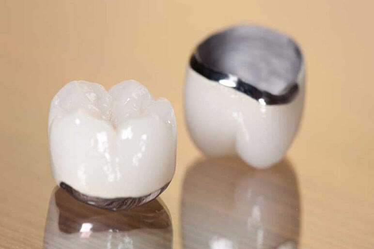 mão răng sứ là gì phân loại chi phí và những câu hỏi về mão sứ