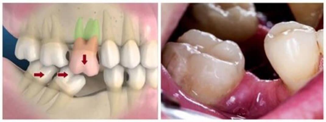 Mất Răng ảnh Hưởng đến Các Răng Còn Lại