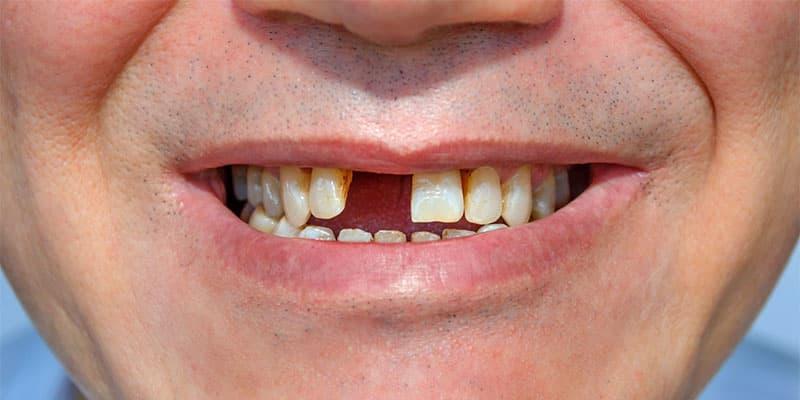 mất răng nên làm gì tốt nhất