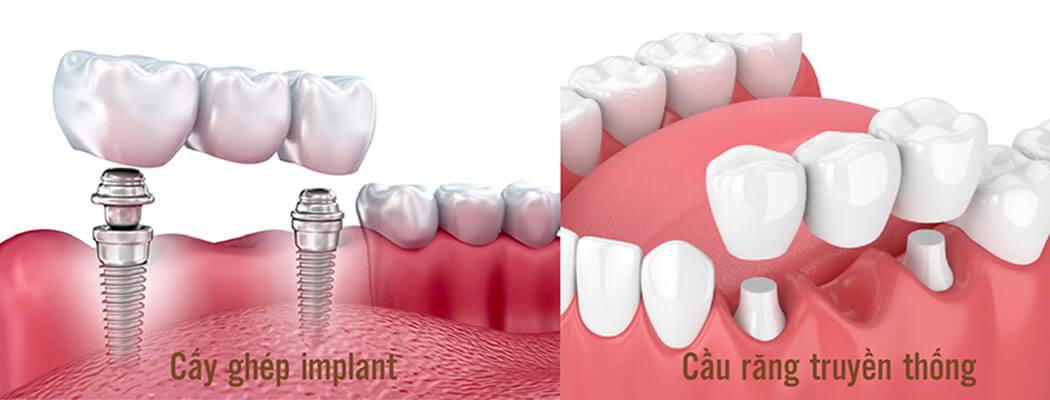 Nên Chọn Cấy Gép Implant Hay Cầu Răng Sứ