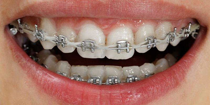 niềng răng không được chi trả bởi bhyt