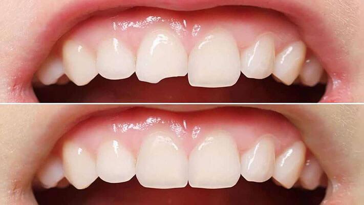 Phục Hình Răng Bị Chấn Thương