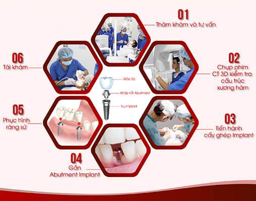 Quy Trình Trồng Răng Implant C Tech