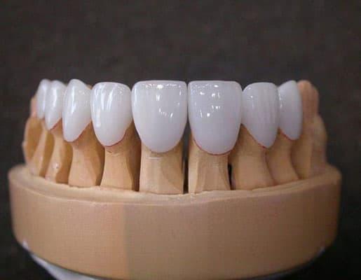răng sứ cercon ht mang độ trong bóng hoàn hảo