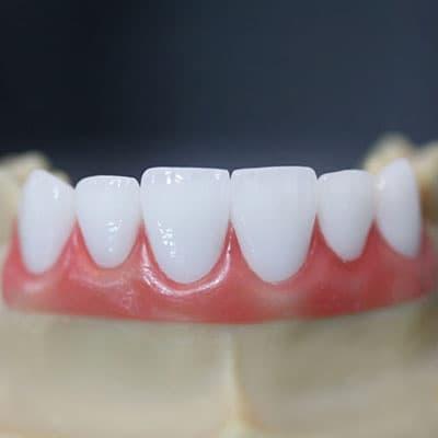 răng sứ cercon zirconia mang lại sự tự nhiên đỉnh cao