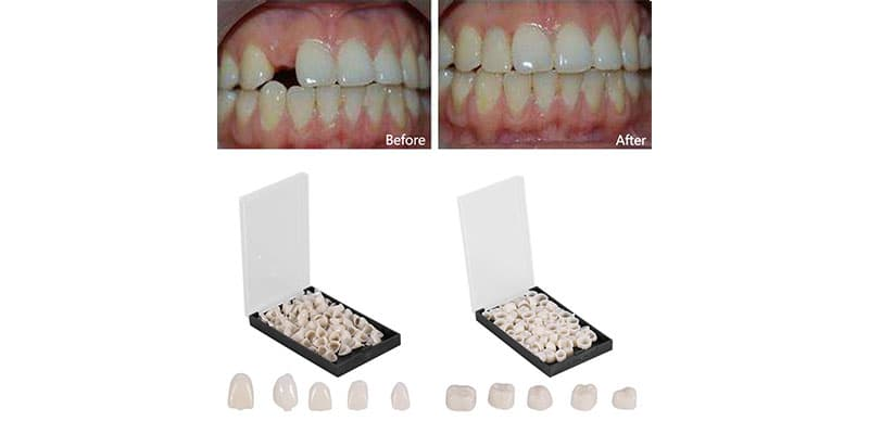 răng sứ cercon hay emax để phục hình răng mất