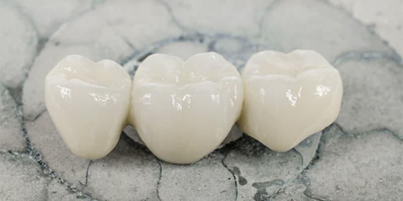 răng sứ toàn sứ cercon cao cấp