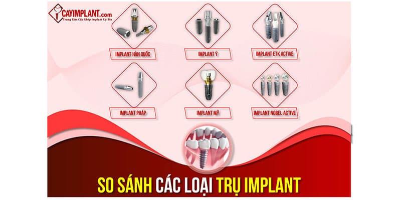 so sánh các trụ Implant trong cấy ghép răng