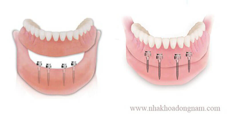 sử dụng mini implant khi mất răng toàn hàm phần nướu bị tiêu quá nhiều
