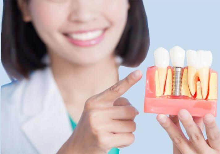 Trồng Răng Implant Loại Tốt Giá Bao Nhiêu Tiền