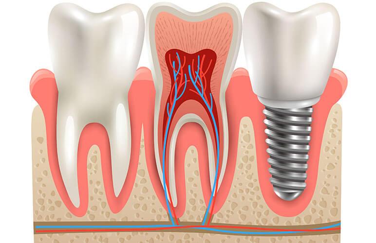 trồng răng cấy ghép implant giá bao nhiêu tiền