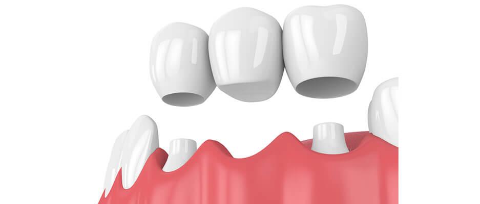 trồng răng cửa bằng cầu răng sứ