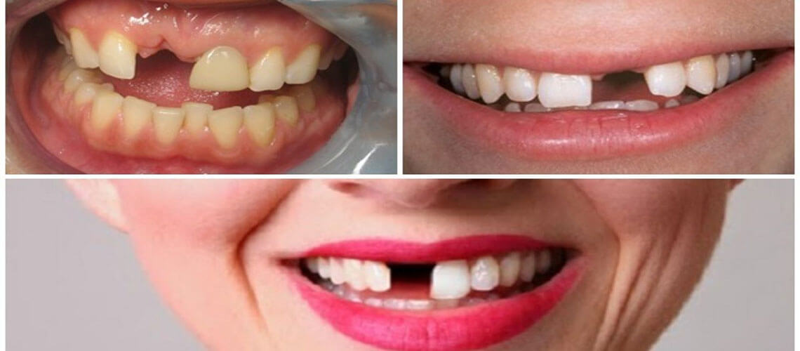 trồng răng cửa hết bao nhiêu tiền