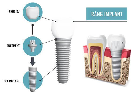 Trồng Răng Giả Bằng Cấy Ghép Implant