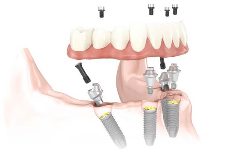 Trồng Răng Nguyên Hàm Bằng Implant All On 4