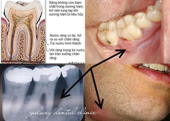 Trường Hợp Nên Ghép Xương Răng