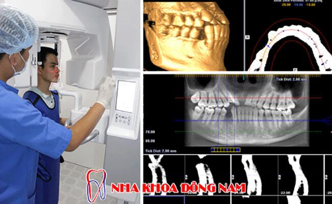 ưu điểm Nổi Bật Của Chụp Ct Răng